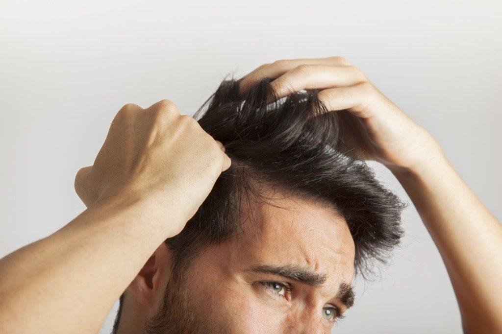 Resultado de imagen para perdida de cabello