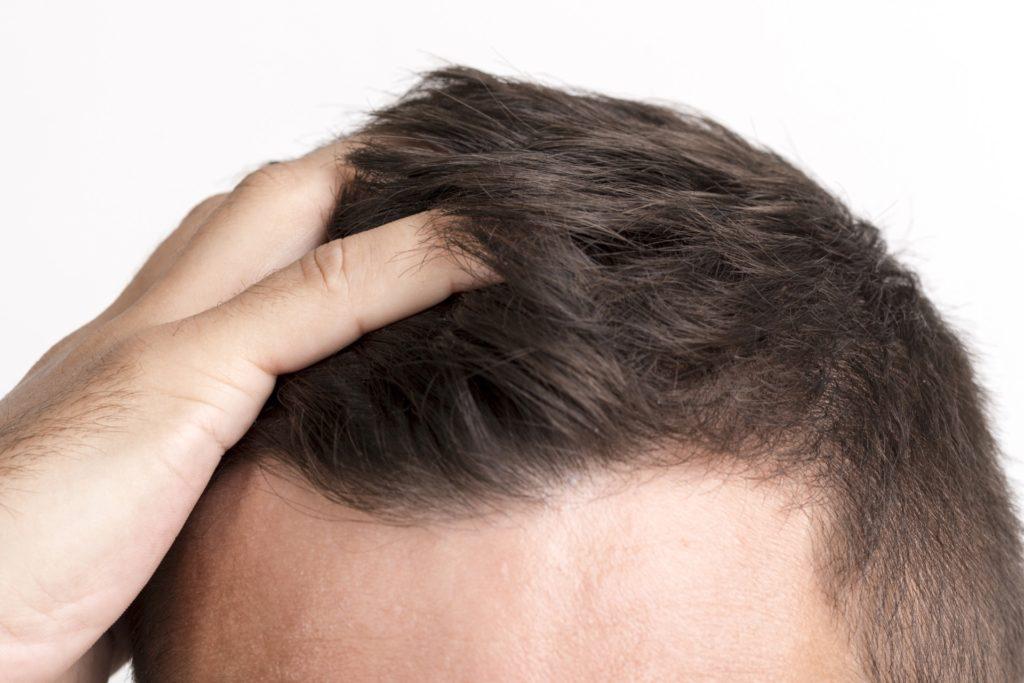 Procedimiento pionero de Células Madre que no solo previene la caída del cabello sino que lo revierte